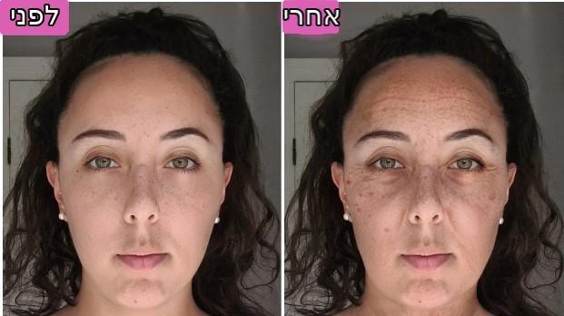 השפעת המסכים על עור הפנים. אילוסטרציהאי, צילום מסך
