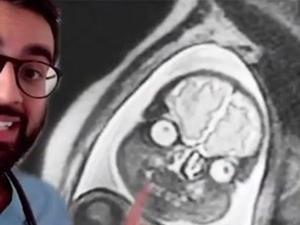 איך נראים תינוקות ב-MRI. MadMedicine/TikTok), צילום מסך