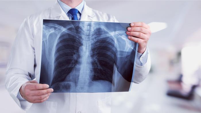 רופא מחזיק ביד צילום ריאות. ShutterStock
