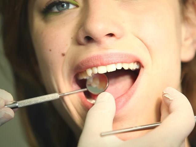 עברתם טיפול שיניים? כך תשמרו על הפה אחריו