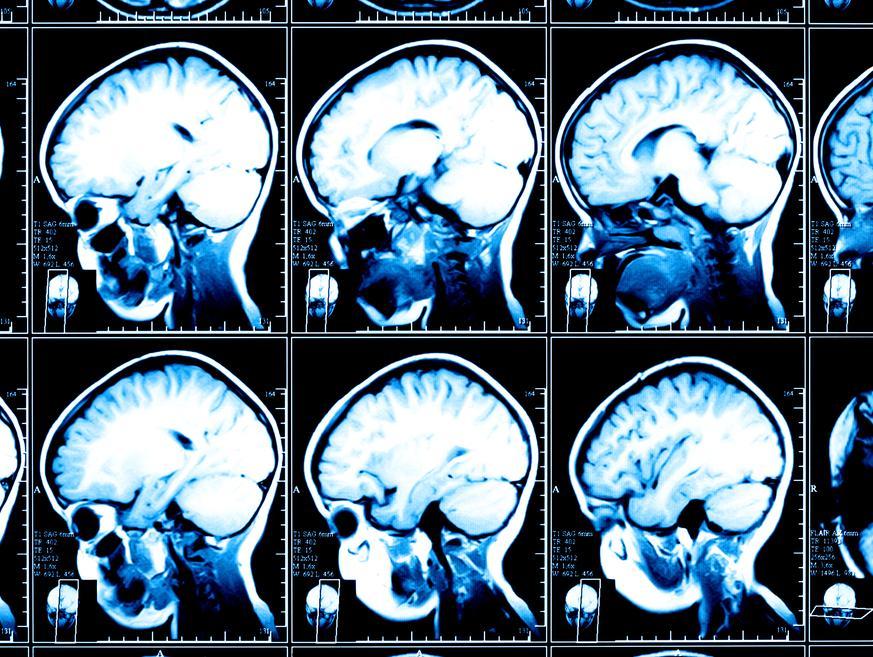כשהכרס גדלה, המוח שלכם מתכווץ