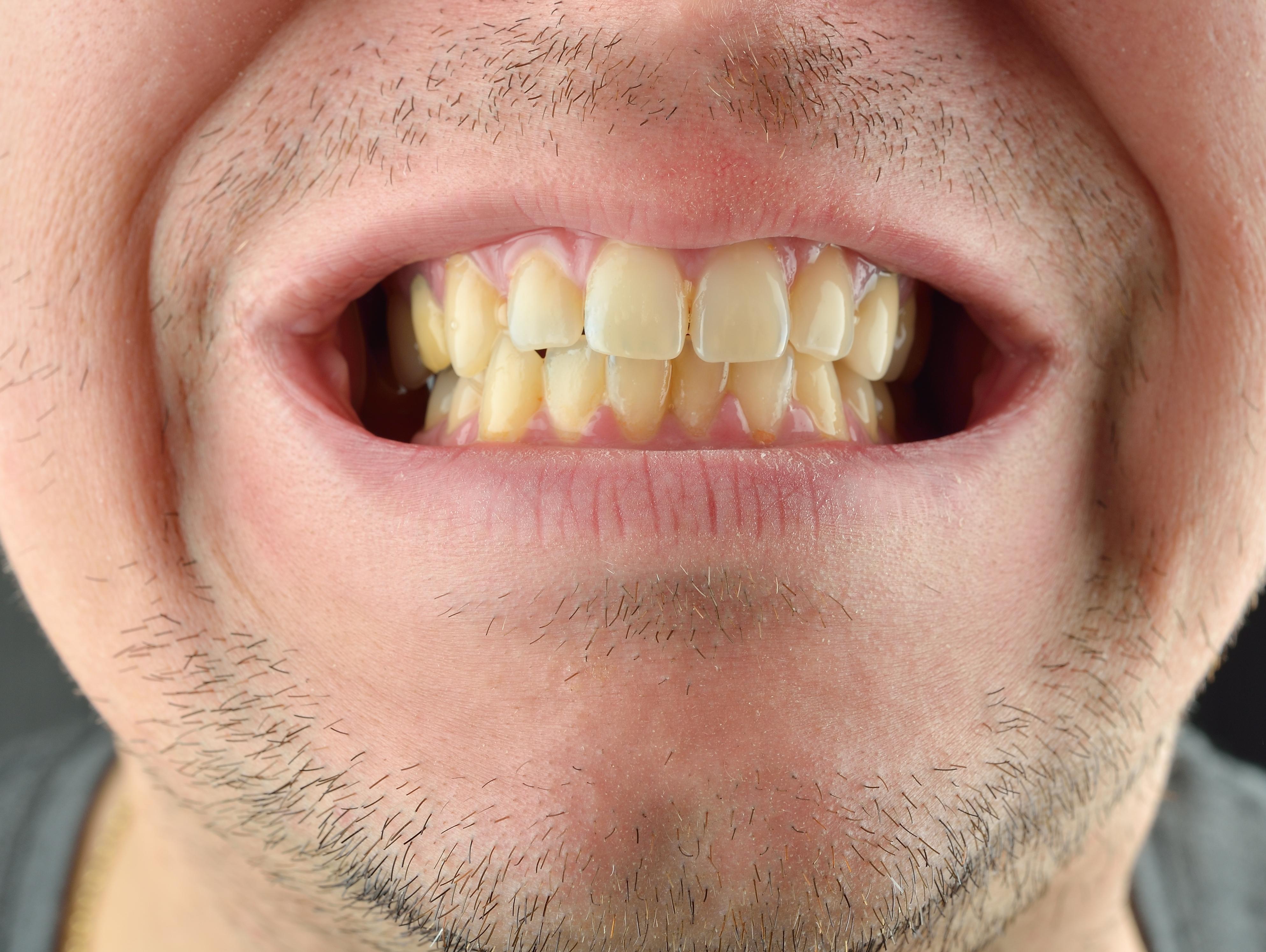 הפירות האלה ממש טובים לשיניים ולבריאות הפה שלכם