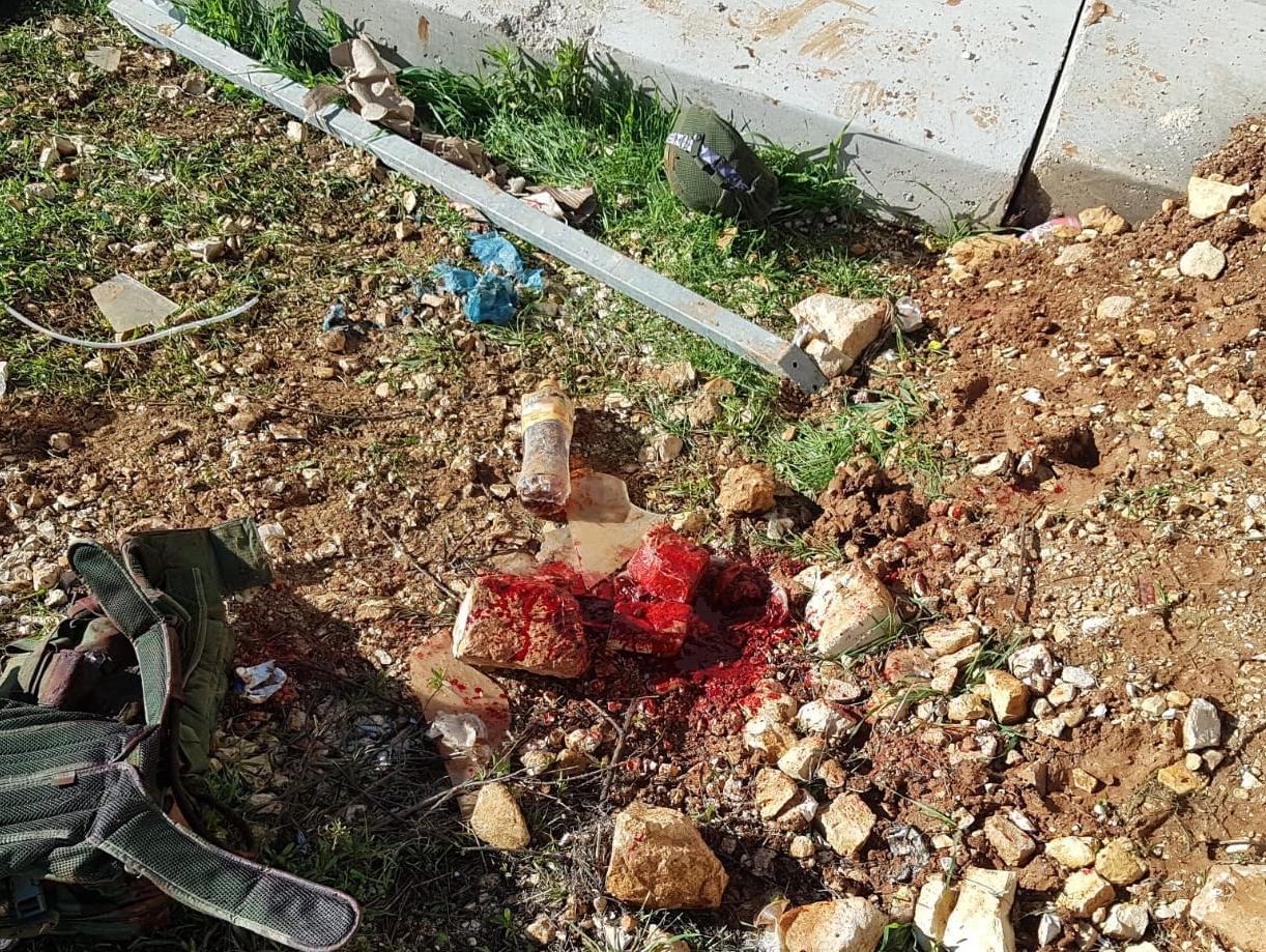 תקרית נוספת ליד בית-אל: חייל נפצע בראשו קשה מדקירה ומאבן