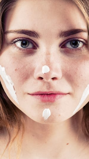 נערה עם משחה נגד חצ'קונים על הפנים