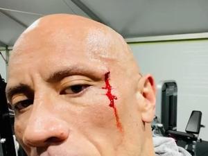 דה רוק נפצע במהלך אימון