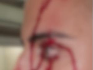 שוטרים הותקפו, נפצעו ונכלאו במהלך מבצע מעצר חשודים במאה שערים 20.4.21. דוברות משטרת ישראל