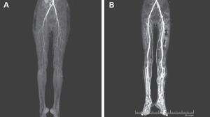 צילומי CT שנערכו לצעירה שסובלת מארגוטיזם וממחישים את זרימת הדם לרגליה לפני ואחרי מתן מדללי דם