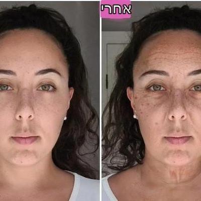 השפעת המסכים על עור הפנים