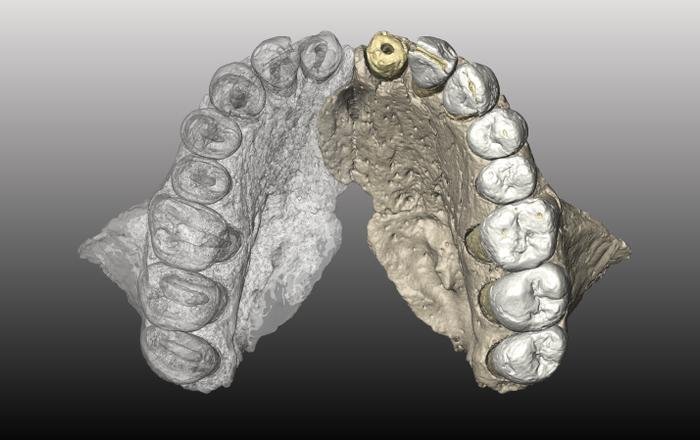Un regard sur le Sagittaire des dents dentaires de Mycelia (Photographes autorisés temporaires, Université de Tel Aviv)